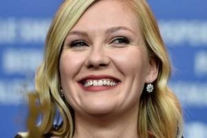 Bellas actrices que destacan sin tener una sonrisa perfecta